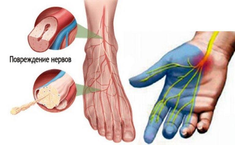 Лечение нейропатии нижних конечностей в домашних условиях