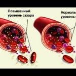 глюкоза в крови