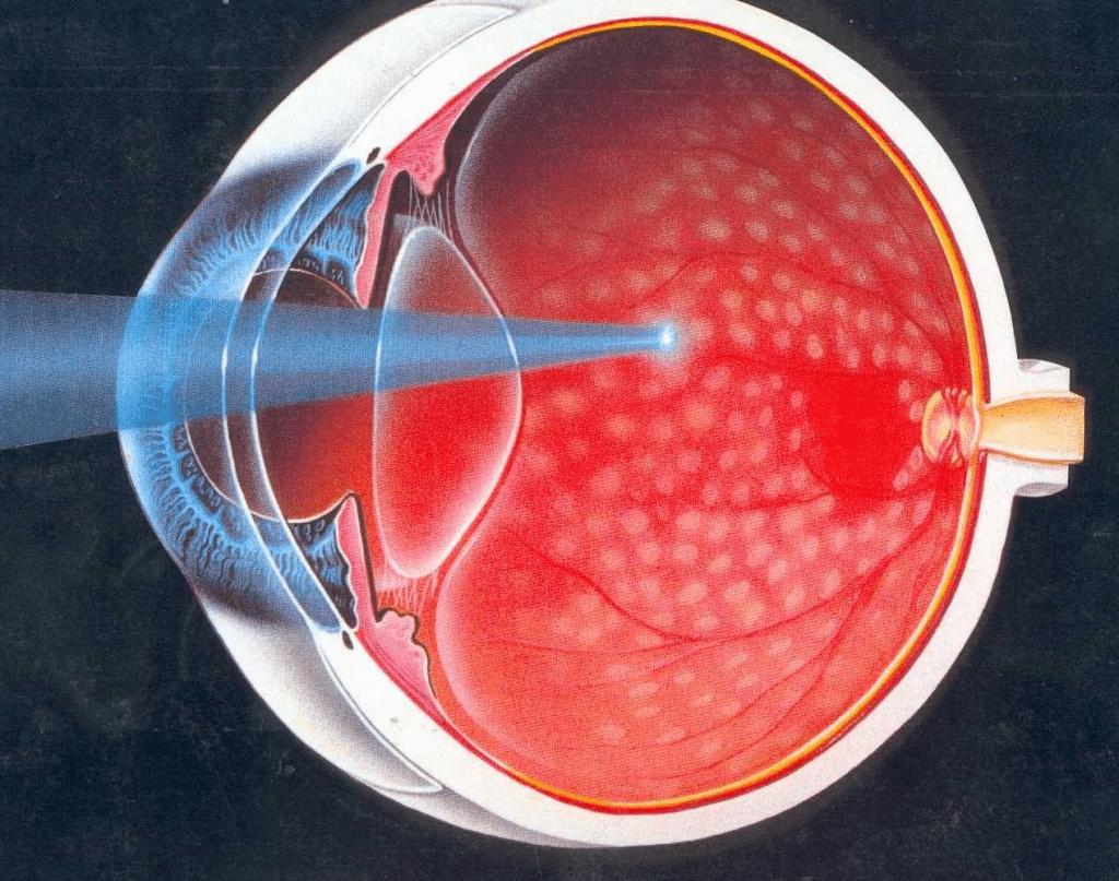 Лечение сетчатки глаза при диабете
