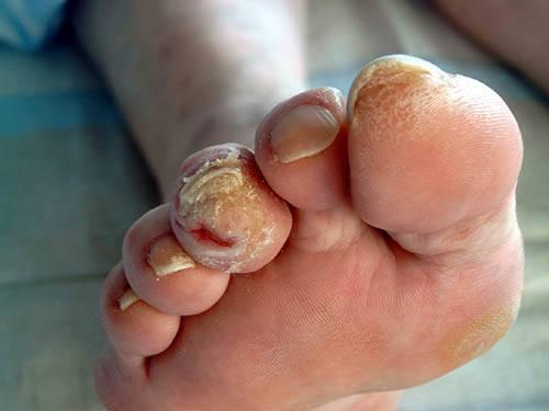 язвы на пальцах ног при диабете