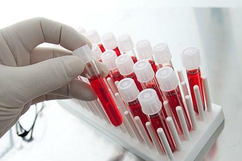 Лекарства от диабета 2 типа нового поколения: новые диабетические ...