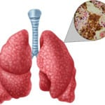 туберкулез при сахарном диабете