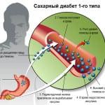 лечение диабета 1 типа