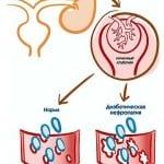 Заболевания влияющие на повышение уровня сахара в крови