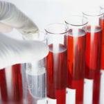 Общий анализ крови: показывает ли сахар в крови и сахарный диабет?