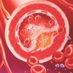 Чистка сосудов при сахарном диабете народными средствами: лекарства и препараты