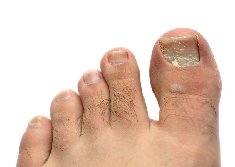 Ногти при сахарном диабете: как выглядит диабетический грибок ...