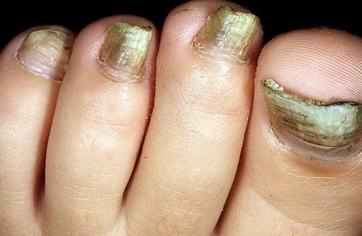 Грибковые заболевания на ногтях с