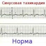 Тахикардия при диабете 2 типа: лечение