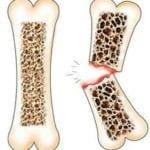 Перелом при сахарном диабете: лечение открытого перелома