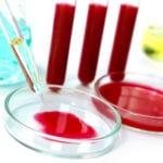 Как обозначается сахар в анализе крови у взрослых?
