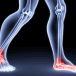 Диабетическая и алкогольная полинейропатия: симптомы поражения нижних конечностей