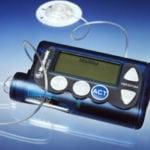 Инсулиновые помпы Медтроник: инструкция по использованию при диабете