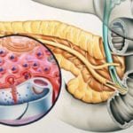 Пониженное содержание инсулина в крови: что это значит?