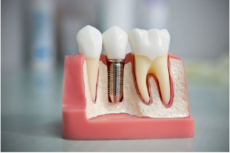 протезирование зубов при диабете 2 типа