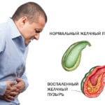 Диета номер 5 при желчнокаменной болезни и после лапароскопии желчного пузыря