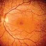 Диабетическая ангиоретинопатия сетчатки: что это, ка проявляется поражение зрения?