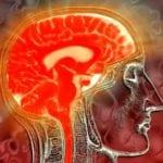 Диабетическая энцефалопатия с выраженными нарушениями психики: симптомы и лечение