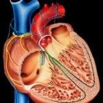 Сахарный диабет и учащенный пульс: в чем причина тахикардии?