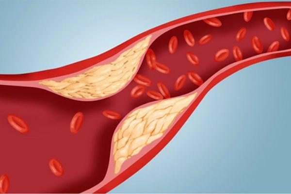 Изза чего повышен холестерин