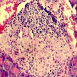 Как восстановить работу поджелудочной железы при сахарном диабете