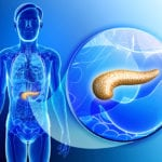Деформация поджелудочной железы: что это такое в хроническом панкреатите?