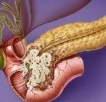 Что такое липоматоз поджелудочной железы и как его лечить?