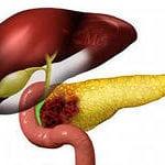 Лечение нейроэндокринной опухоли поджелудочной железы