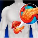 Основное звено патогенеза острого панкреатита