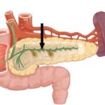 Ввирсунгов проток поджелудочной железы: лечение при расширении и сужении