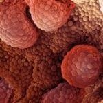 Опухоль поджелудочной железы с метастазами в печень: прогноз жизни