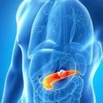 Современные методы лечения и профилактики острого панкреатита