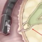 Камень и песок в поджелудочной железе: симптомы и лечение