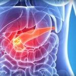 Хирургическое лечение хронического панкреатита: показания к операции и отзывы