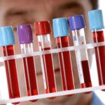 Регуляция синтеза холестерина и холестерола