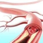 Если холестерин ниже нормы, что это значит?