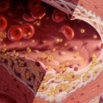 Чем опасен низкий холестерин у женщин и мужчин?