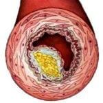 Как лечить холестериновые полипы в желчном пузыре?