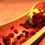 Повышенный холестерин при сахарном диабете 2 типа: как его снизить?
