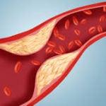 Чем опасно низкое давление при атеросклерозе?