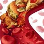 Каким должен быть нормальный уровень холестерина в крови?
