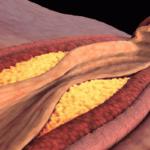 Холестерин 4: что делать, если уровень холестерина от 4.1 до 4.9?