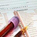 Фракция холестерина ОНП понижена или повышена: что это означает?