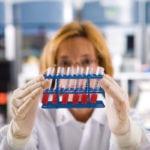 Показатели крови при атеросклерозе: общий анализ и коагулограмма