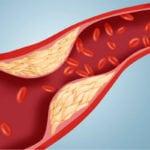 Модифицированные факторы риска развития атеросклероза