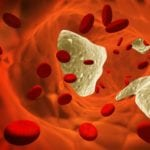 Норивент от холестерина: инструкция по применению и отзывы, аналоги препарата