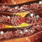 Нарушения обмена холестерина в организме: чем это грозит человеку?