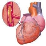 Атеросклероз сосудов: причины возникновения и признаки заболевания