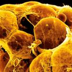 Реакция этерификации холестерина: что это такое?