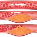 Какие сосуды поражаются при атеросклерозе в первую очередь?